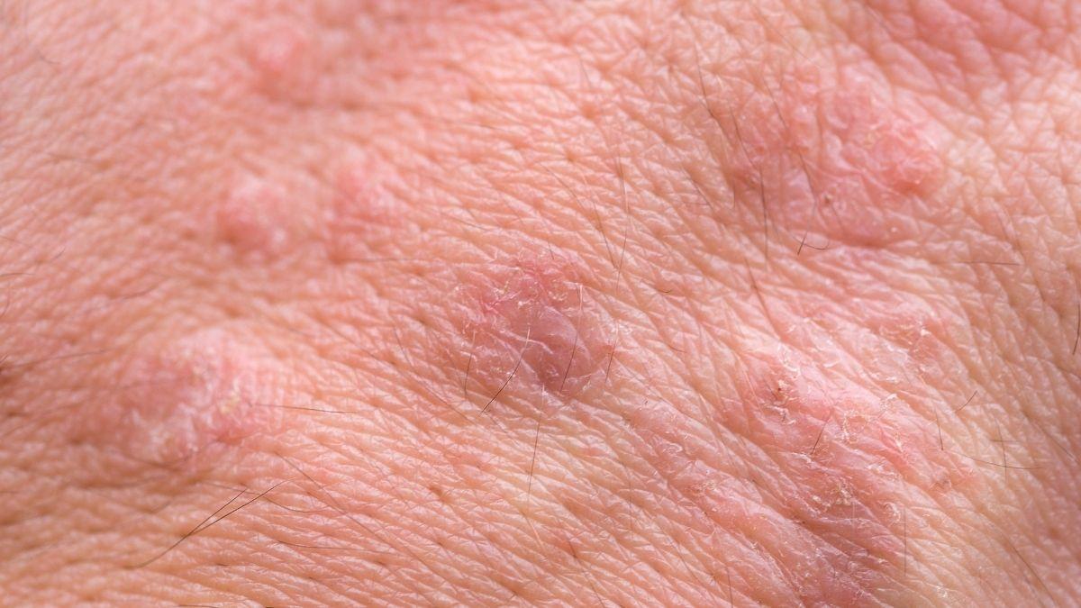 damaged skin - not enough vitamin C